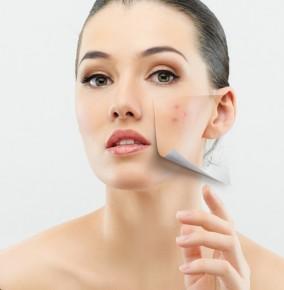 Bí quyết trị sẹo thâm hiệu quả bằng các loại nước ép rau củ