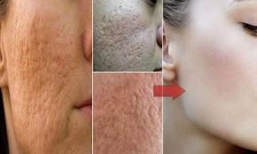 Lỗ chân lông giảm đáng kể, cho làn da mịn màng như em bé với phương pháp tự nhiên này