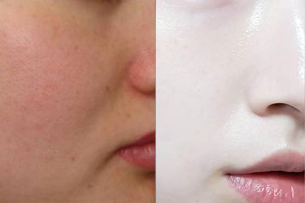 """Chị em phụ nữ """"mê mẩn"""" với cách làm đẹp từ vitamin E, giúp da trẻ ra cả chục tuổi"""