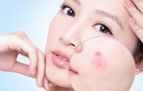 Bỏ túi 5 mẹo nhỏ này để dễ dàng đánh bay mụn giúp gương mặt luôn rạng rỡ