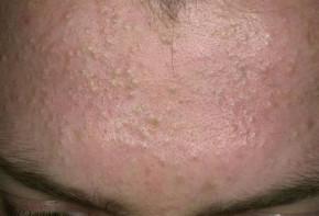 Tôi đã hết hoàn toàn mụn ẩn dưới da chỉ trong 2 tuần