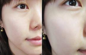 Làm thế nào để se khít lỗ chân lông trên mặt hiệu quả, cho da mãi sáng mịn