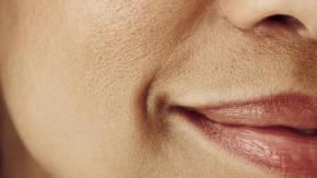 Lỗ chân lông dù to như hố cũng hoàn toàn nhẵn thín với 6 mẹo cực dễ