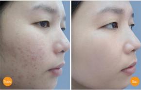 3 Loại mặt nạ tự nhiên giải quyết triệt để mụn và vết thâm cho da nhờn